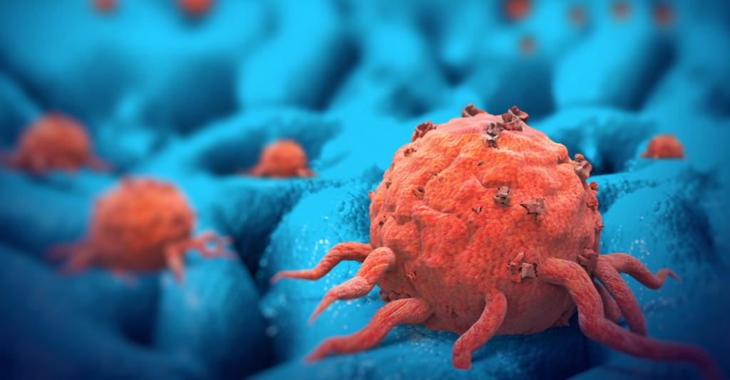 10 Cara Murah Mencegah Penyakit Kanker