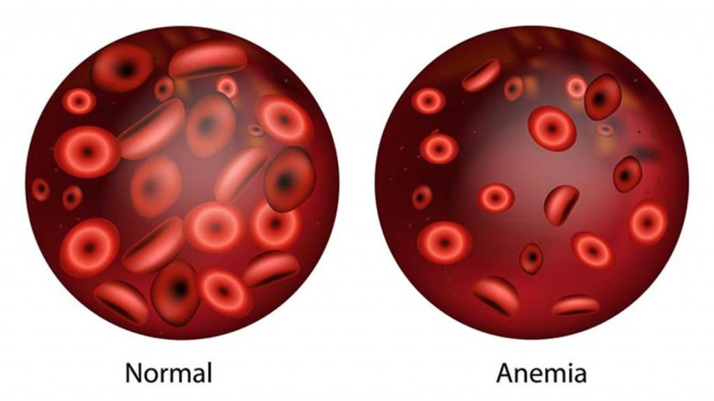 Ilustrasi Anemia