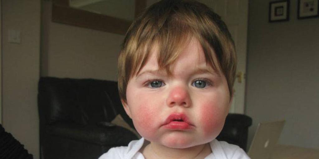 Ilustrasi Fifth Disease Pada Anak