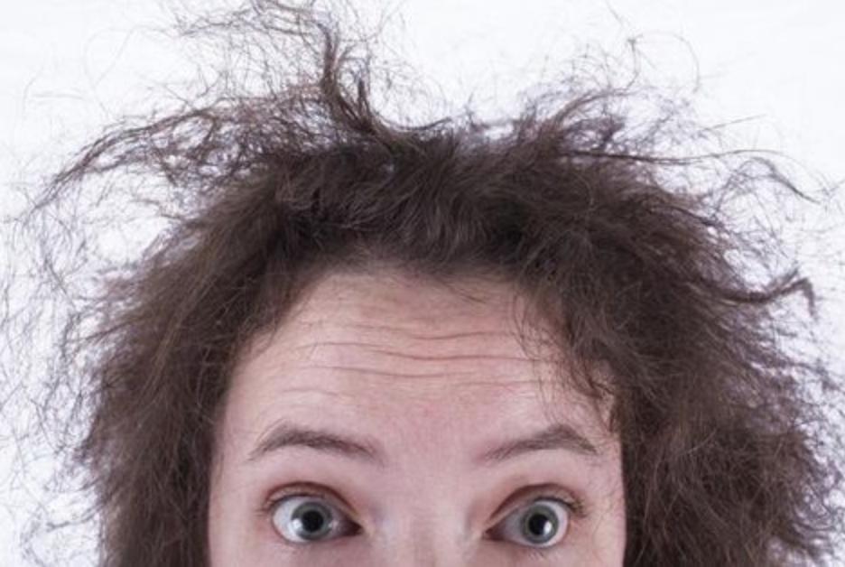 Ilustrasi Rambut Kering dan Kasar