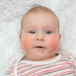 Ilustrasi Alergi Pada Bayi