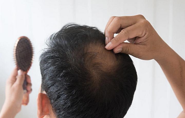 Penyakit yang Menyebabkan Rambut Rontok